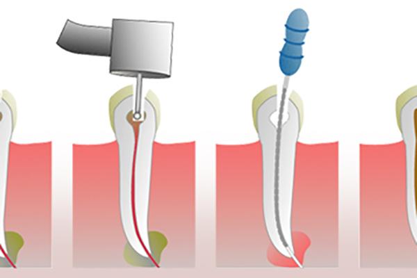Что сделать чтобы зуб не был чувствительным