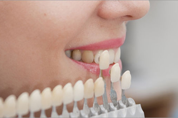 виниры на 4 зуба
