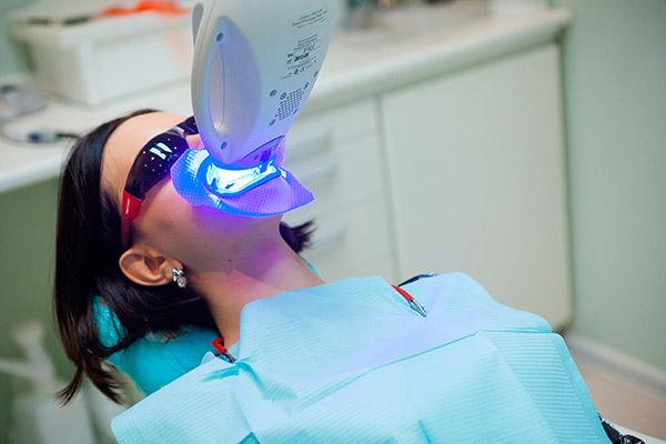 Как очистить зубы от черноты