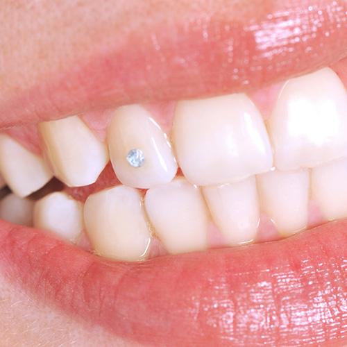 чистка и отбеливание зубов спб